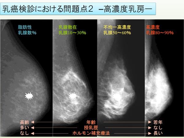 症状 ブログ 初期 乳がん がんの初期症状……医師ががんを疑う症状とは [癌(がん)]