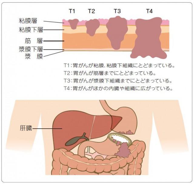 胃がんの深達度図