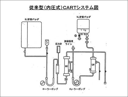従来型(内圧式)CARTシステム図